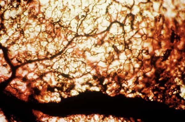 Normal Photograph - Intestinal Capillaries by Pr. E. Tamboise - Cnri