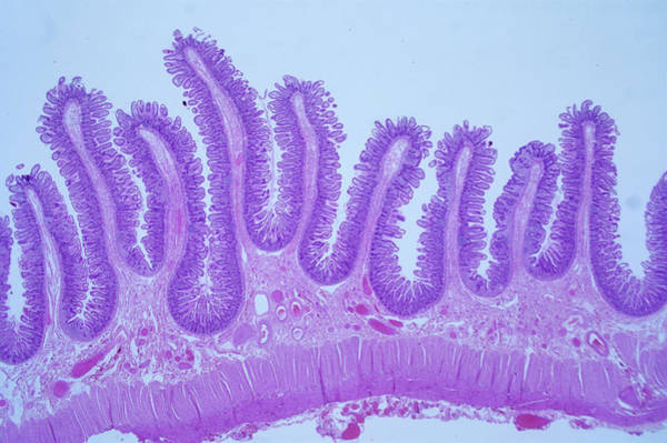 Wall Art - Photograph - Intestinal Lining by Innerspace Imaging/science Photo Library