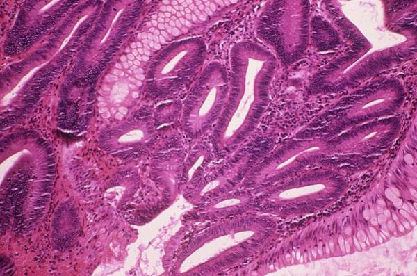 Wall Art - Photograph - Intestinal Polyp by Cnri/science Photo Library