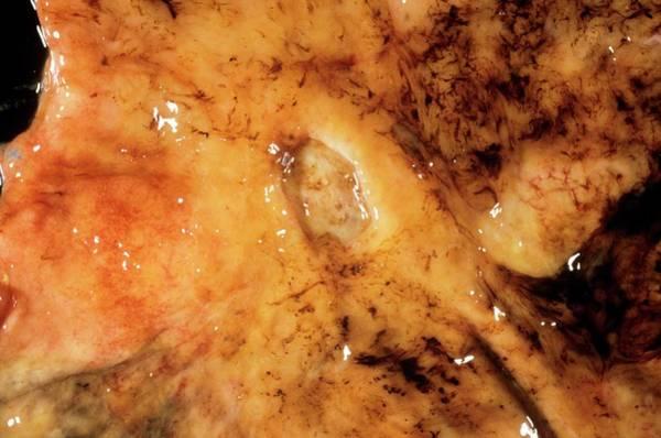 Gi Photograph - Intestinal Ulcer by Cnri