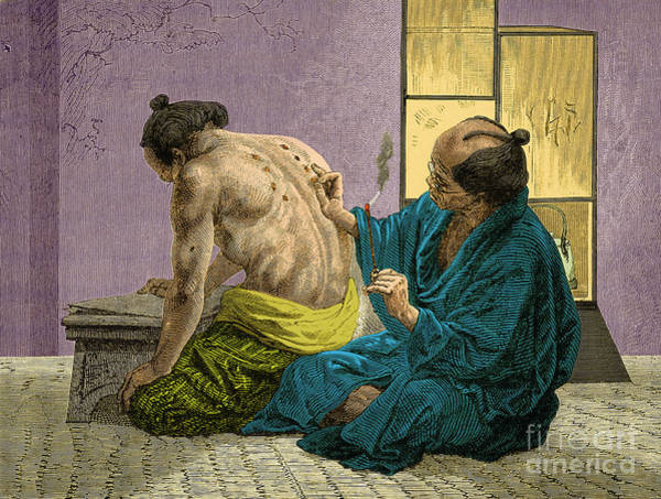 Tcm Wall Art - Photograph - Japanese Physician Applying Moxa by Science Source