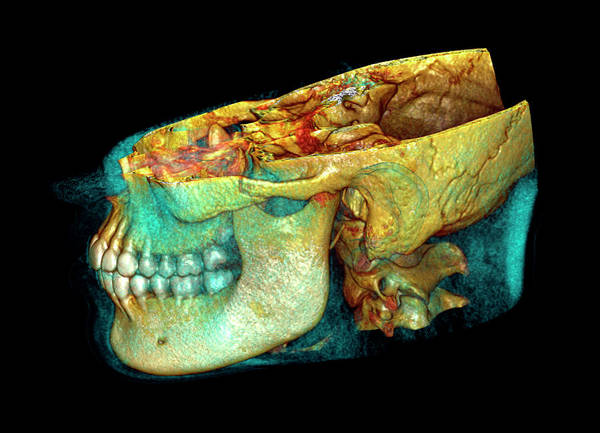 Multi-dimensional Wall Art - Photograph - Jaw Bones by Antoine Rosset/science Photo Library