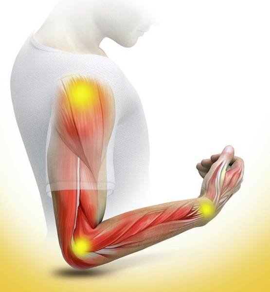 Wall Art - Photograph - Joint Pain by Claus Lunau/science Photo Library