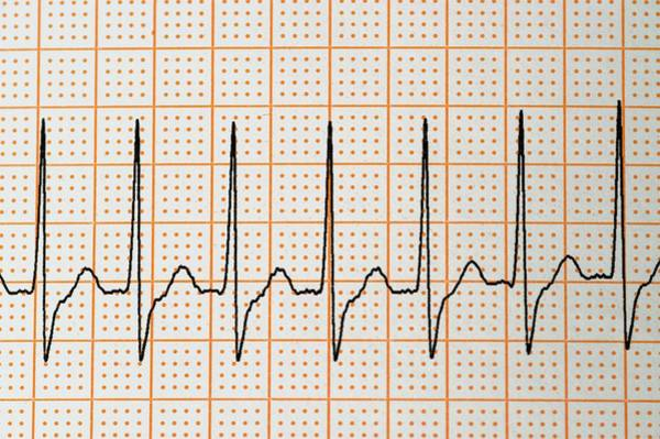 Trace Photograph - Junctional Rhythm Of The Heartbeat by Dr P. Marazzi/science Photo Library
