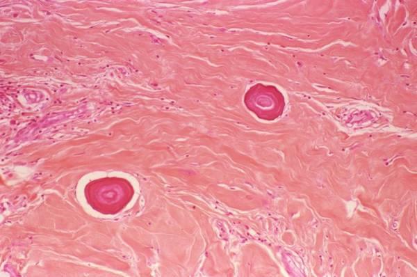 Light Microscope Wall Art - Photograph - Juvenile Fibroma by Cnri