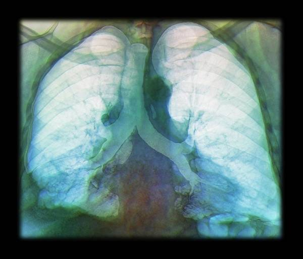 Cts Photograph - Kaposi's Sarcoma Of The Lung by Zephyr/science Photo Library