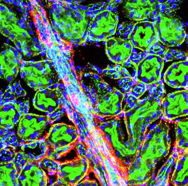 Human Anatomy Wall Art - Photograph - Kidney Arteriole by R. Bick, B. Poindexter, Ut Medical School