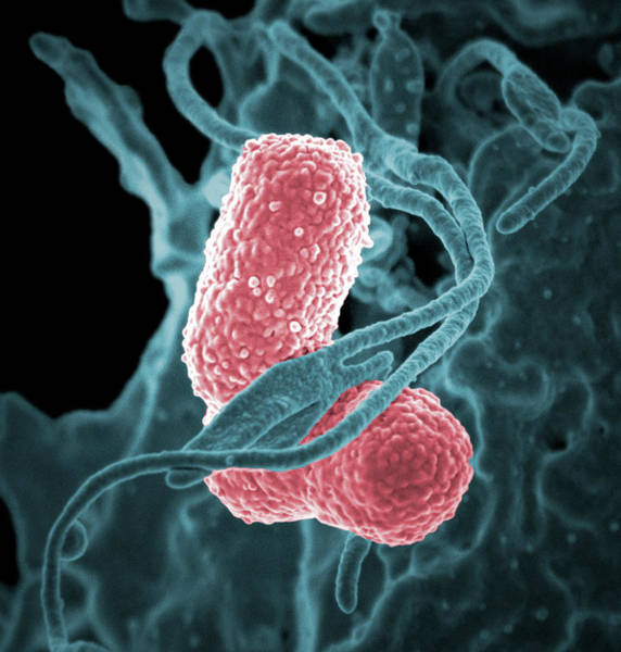 Scanning Electron Micrograph Wall Art - Photograph - Klebsiella Pneumoniae Bacteria by National Institutes Of Health