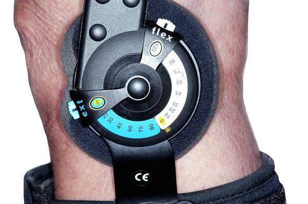 Fit Photograph - Knee Brace After A Fracture by Dr P. Marazzi/science Photo Library