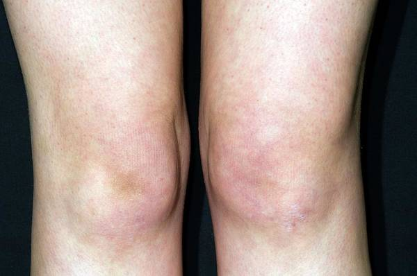Knees Wall Art - Photograph - Knee Effusion In Hla B27 Patient by Dr P. Marazzi/science Photo Library