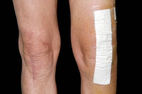 Dressing Photograph - Knee Scars After Joint Replacement by Dr P. Marazzi/science Photo Library
