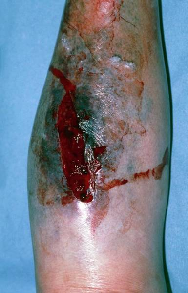 Wall Art - Photograph - Laceration And Haematoma On Leg Of Elderly Woman by Dr P. Marazzi/science Photo Library