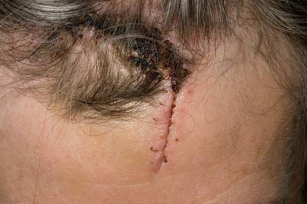 Wall Art - Photograph - Laceration Of The Forehead by Dr P. Marazzi/science Photo Library