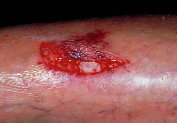 Shin Photograph - Laceration On The Shin Of An Elderly Woman by Dr P. Marazzi/science Photo Library