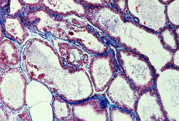 Histology Wall Art - Photograph - Lactating Breast Tissue by Cnri/science Photo Library