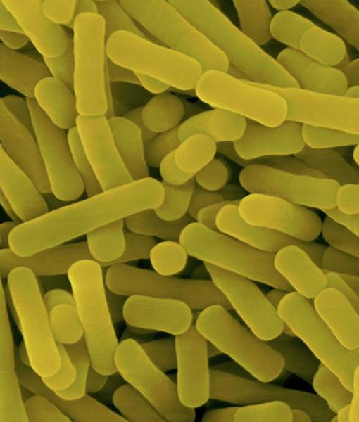 Anaerobe Wall Art - Photograph - Lactobacillus Sp. Gram-positive by Dennis Kunkel Microscopy/science Photo Library