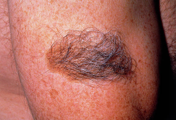 Hairy Photograph - Large Hairy Birthmark (becker's Naevus) On Arm by Dr H.c.robinson / Science Photo Library