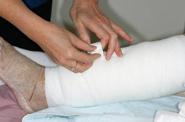 Dressing Photograph - Leg Ulcers Dressed With A Bandage by Dr P. Marazzi/science Photo Library