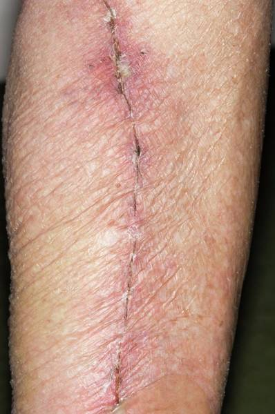 Heal Wall Art - Photograph - Leg Vein Scar For Heart Surgery by Dr P. Marazzi/science Photo Library