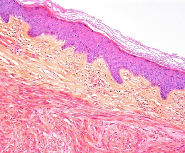 Malignant Wall Art - Photograph - Leiomyosarcoma Of Skin. Light Micrograph by Steve Gschmeissner