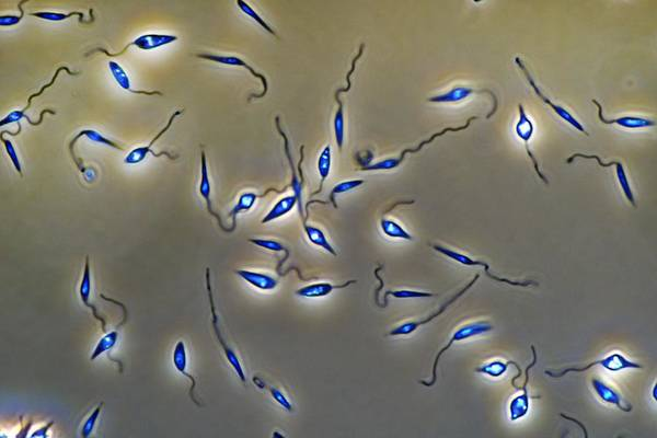 Baghdad Wall Art - Photograph - Leishmania Parasites by Sinclair Stammers