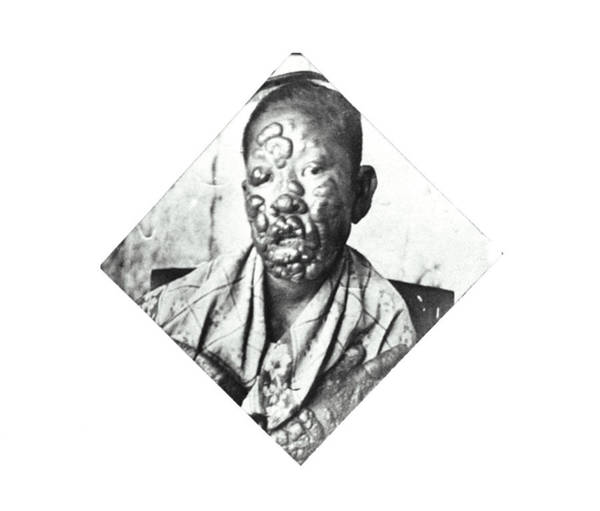 Philippines Photograph - Leprosy Patient by National Library Of Medicine