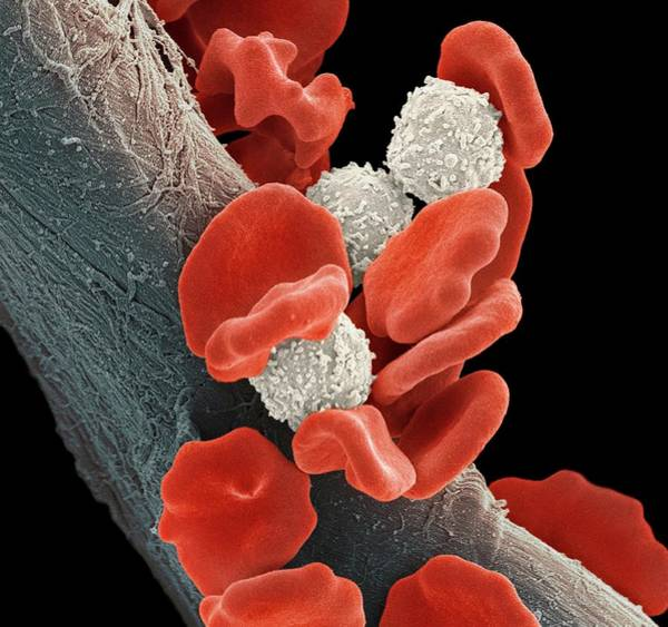 Wall Art - Photograph - Leukaemia Blood Cells by Steve Gschmeissner