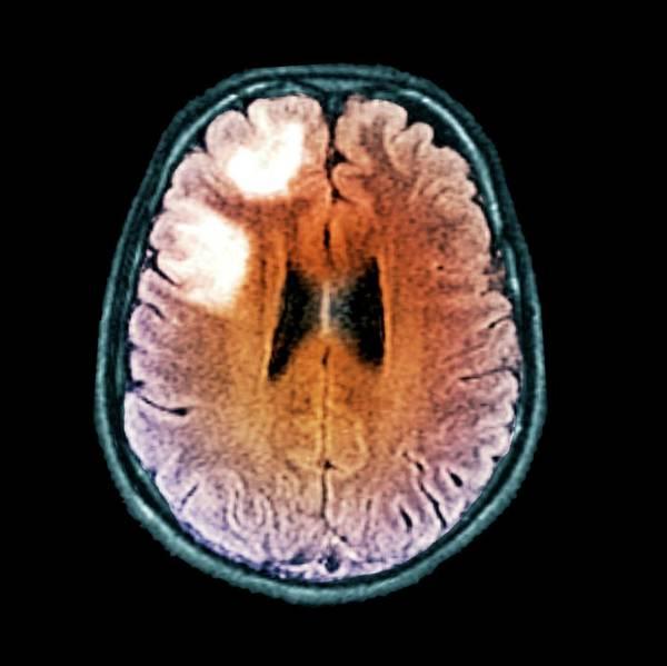 Brain Scan Photograph - Leukoencephalopathy by Zephyr