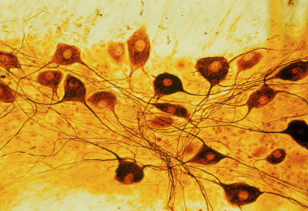 Microscopic Photograph - Light Micrograph Of Neurone Cell Bodies by Biophoto Associates/science Photo Library