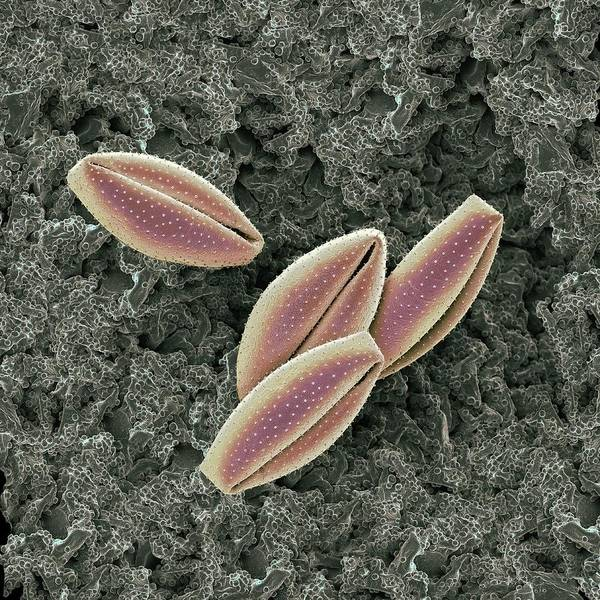 Wall Art - Photograph - Lily Pollen Grains by Martin Oeggerli/science Photo Library