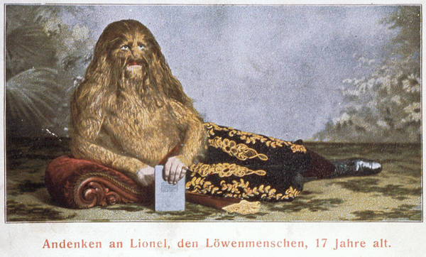 Lionel Photograph - Lion-faced Man by Jean-loup Charmet/science Photo Library
