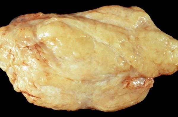 Fatty Tissue Photograph - Lipoma by Cnri/science Photo Library