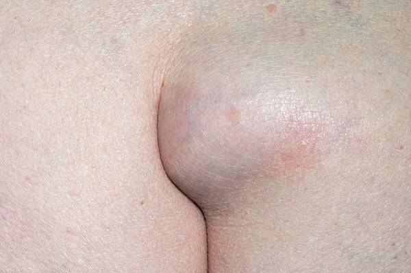 Wall Art - Photograph - Lipoma In The Buttock Cleft by Dr P. Marazzi/science Photo Library