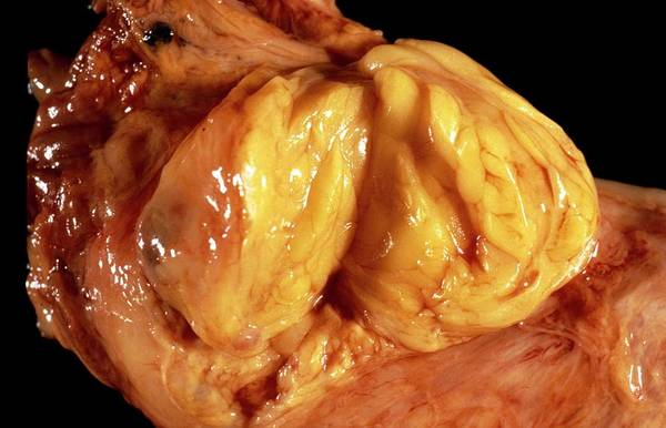 Fatty Tissue Photograph - Lipoma Of The Oesophagus by Cnri