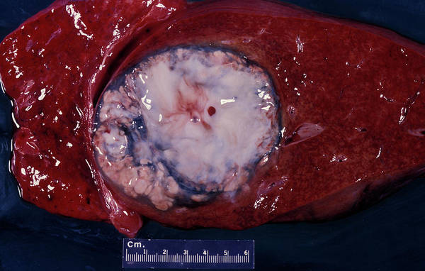 Amoebiasis Wall Art - Photograph - Liver Abscess by Dr M.a. Ansary/science Photo Library