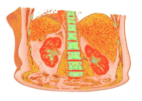 Internal Organs Photograph - Liver And Spleen And Kidneys by K H Fung/science Photo Library