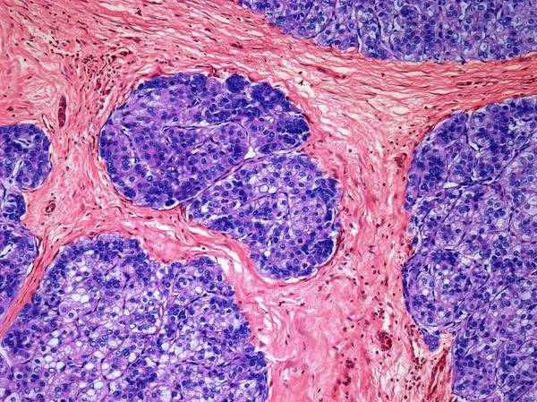 Carcinoma Wall Art - Photograph - Liver Cancer by Steve Gschmeissner/science Photo Library