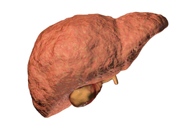 Wall Art - Photograph - Liver Fibrosis by Kateryna Kon/science Photo Library