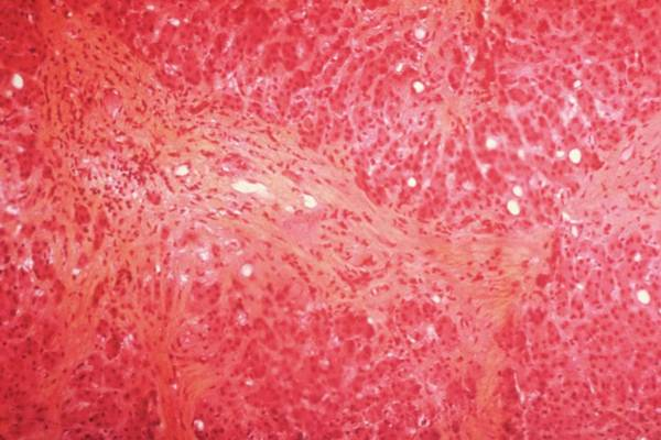Microscope Wall Art - Photograph - Liver In Kwashiorkor by Imtssa/cnri/science Photo Library