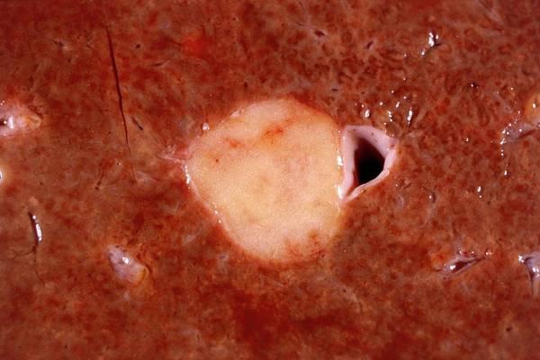 Fatty Tissue Photograph - Liver Lipoma by Cnri