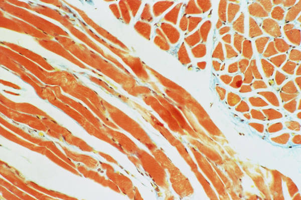 Voluntary Muscle Photograph - Lm Of A Section Through Skeletal Muscle by Biophoto Associates/science Photo Library