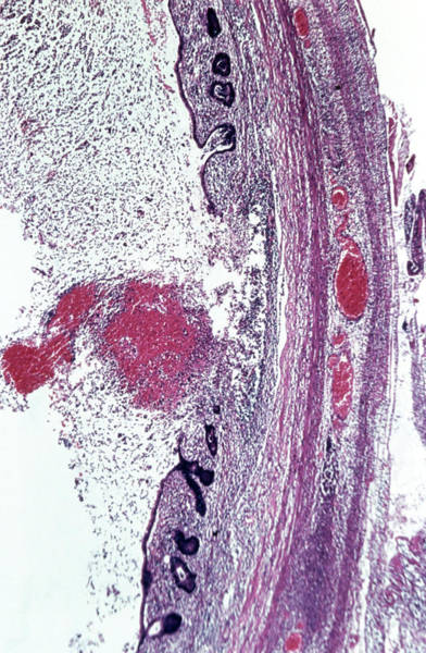 Microscopic Photograph - Lm Of Appendix Showing Acute Appendicitis by Biophoto Associates/science Photo Library