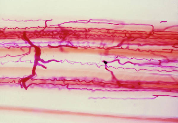 Voluntary Muscle Photograph - Lm Of Capillary Blood Supply In Skeletal Muscle by Biophoto Associates/science Photo Library