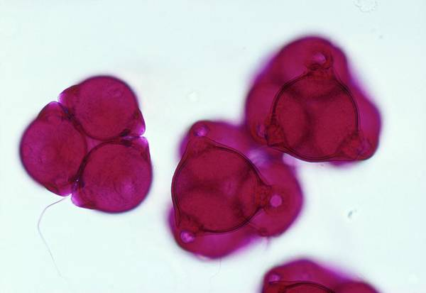 Fireweed Photograph - Lm Of Fire Weed Pollen by Power And Syred/science Photo Library