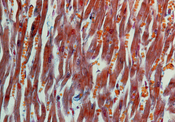 Microscopic Photograph - Lm Of Heart Muscle Fibres by Cnri/science Photo Library