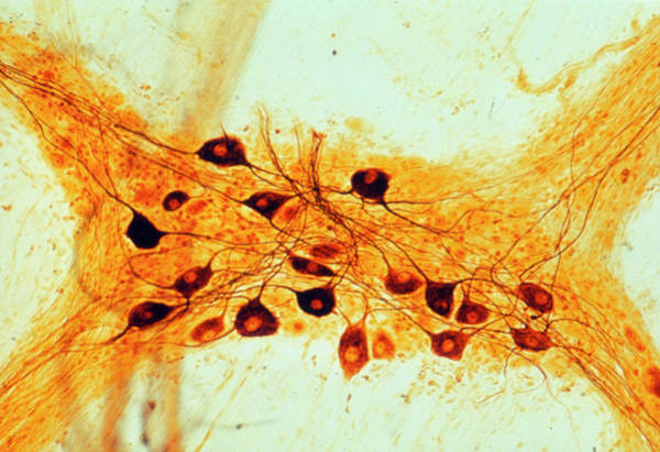 Nervous System Photograph - Lm Of Nerve Cells In Autonomic Nervous System by Biophoto Associates/science Photo Library