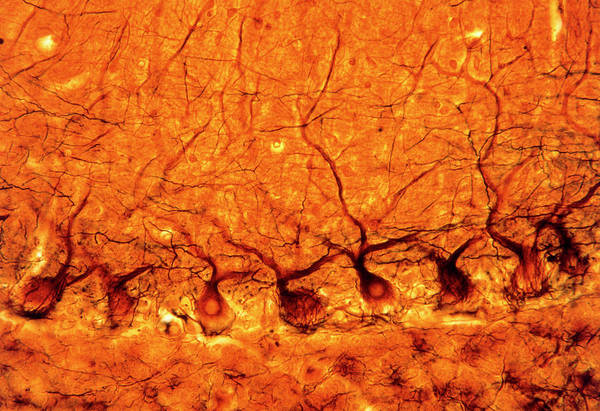 Microscopic Photograph - Lm Of Purkinje Nerves Cells In The Cerebe by Volker Steger