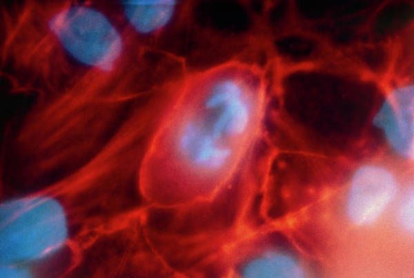 Microscopy Photograph - Lm Showing Cancerous Cells by Dr Gerald Schatten/science Photo Library.