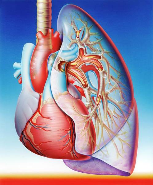 Lung Photograph - Lower Respiratory Tract Infection by John Bavosi