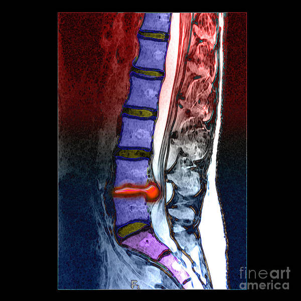 Resonance Wall Art - Photograph - Lumbar Disc Hernation, Mri by Living Art Enterprises